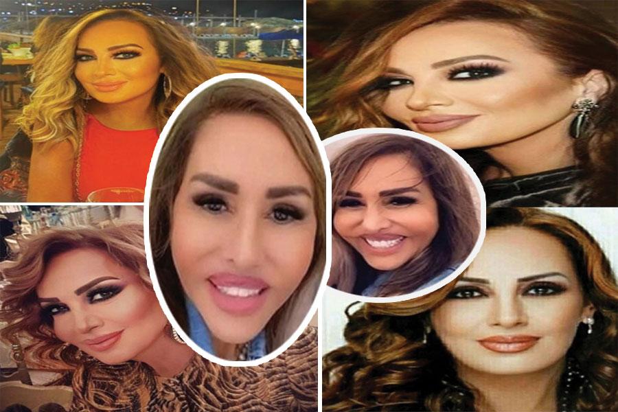 مها سلمى المصري قبل وبعد عمليات التجميل - قديما