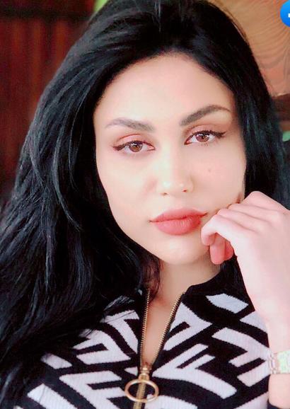 شيرين ابو العز قبل التجميل